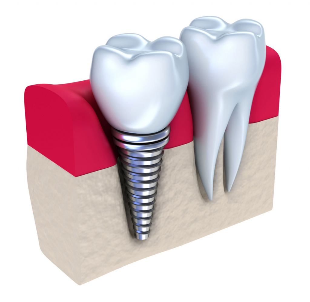Протезирование на высшем уровне от специалистов стоматологической клиники Евродент