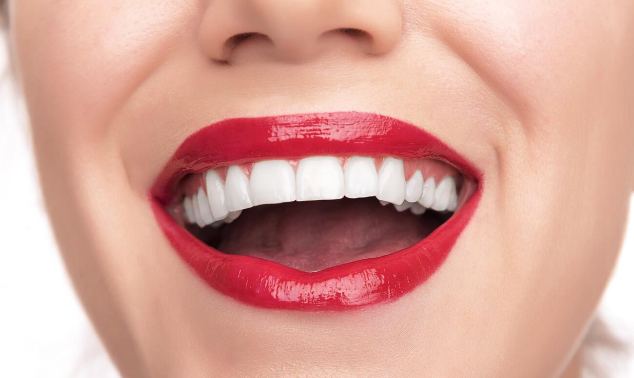 Циркониевые виниры – прочные и эстетичные накладки на зубы