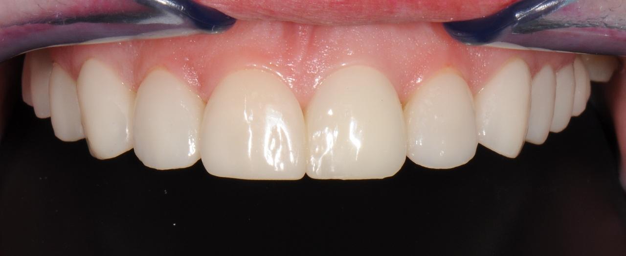 Клиника Доктора Глушко – эффективная и безопасная костная пластика