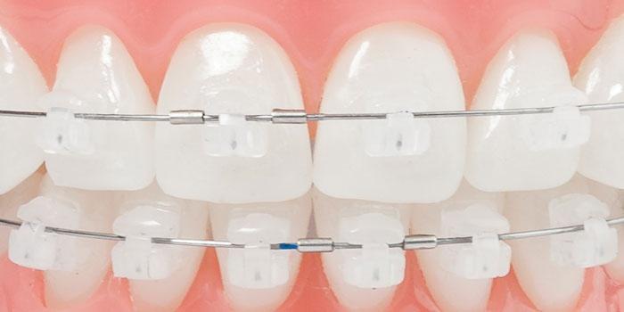 Как я исправила свои зубы с помощью брекетов Ormco Damon Clear
